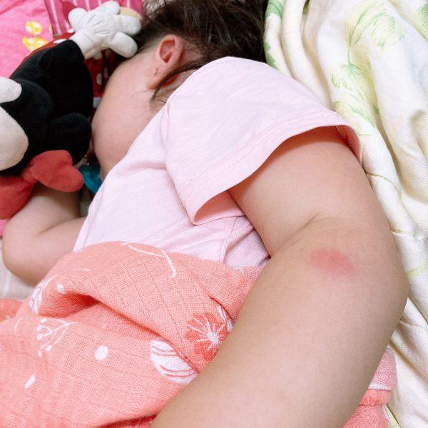 為什麼小孩常被蚊子叮?寶寶被蚊子叮的有效止癢消腫方式與經驗分享